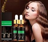shengyuefeng 5X Rapid Growth Hair Essence, Haarwachstumsserum, Behandlung gegen Haarausfall und...